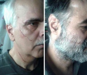 Said Razavi Faghieh (li.) und Siad Madani nach der Messerattacke