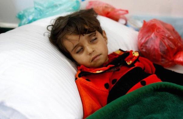 Im Jemen sind bereits 900.000 Menschen an Cholera erkrankt - Foto: isna.ir