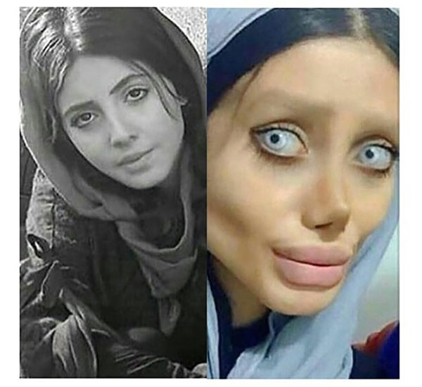 Iranische Frauen Nasen Op