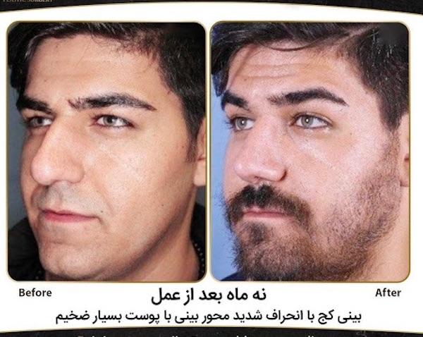 Kosmetische Operationen und Optimierungen des eigenen Körpers sind im Iran sehr verbreitet!