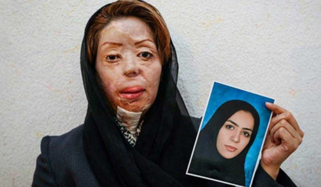 Eine der Opfer von Säureattacken in Isfahan - vorher, nachher!